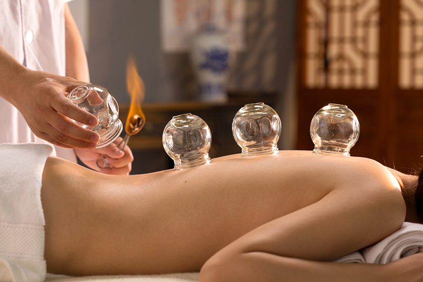 Your Ultimate Guide about the Traditional Chinese Cupping Therapy