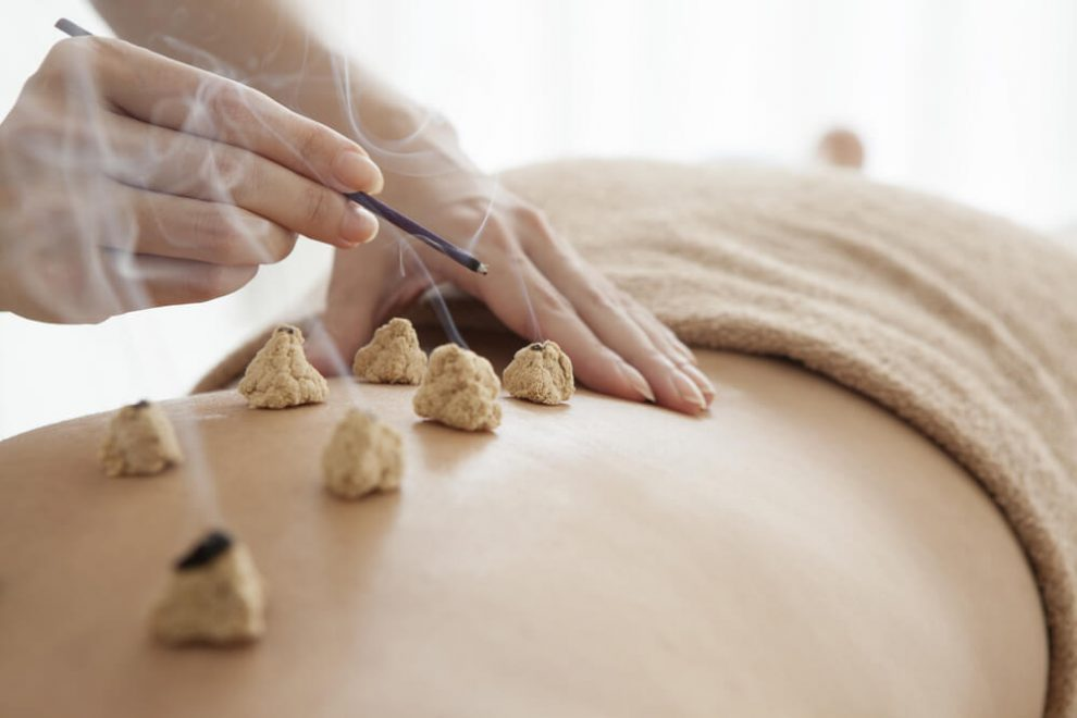 Moxibustion in Traditional Chinese Medicine